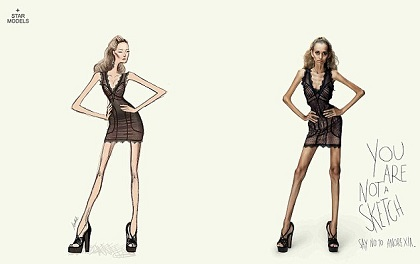 anorexia1(1)